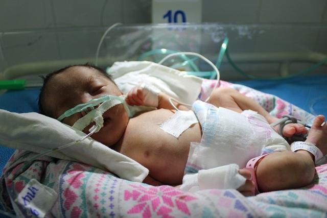 Bé gái bất đắc dĩ phải chào đời khi mới 32 tuần thai kỳ nguy cơ phải đối mặt nhiều rủi ro