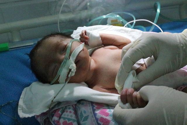 Bé gái ngay sau khi chào đời được chuyển sang Bệnh viện Từ Dũ
