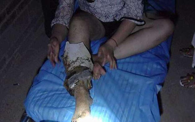 Một mảng sứ lớn vẫn còn dính vào chân khi cô gái được giải cứu