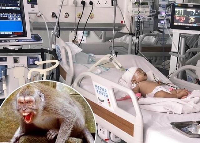 Sau phẫu thuật, bệnh nhi đang được điều trị tích cực (ảnh: bệnh viện)