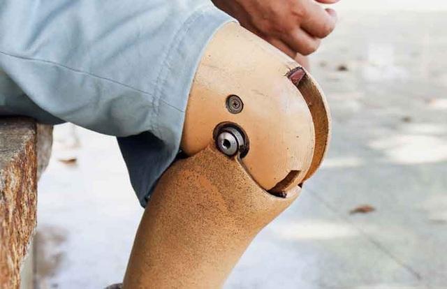 Một người gốc Á ăn xin tại UAE giấu gần 240 triệu đồng trong chiếc chân giả. (Nguồn: Courtesy)