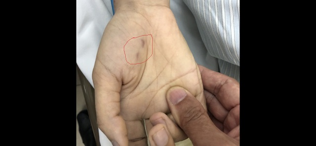 Vết cắn rất nhỏ, đã liền trên tay bệnh nhân.