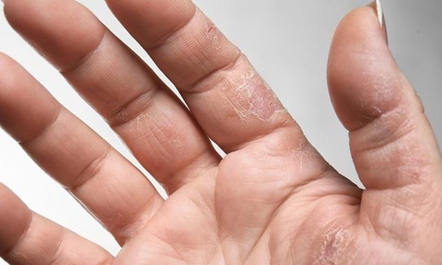 10 kiểu ngứa da càng gãi càng nguy hiểm - 7