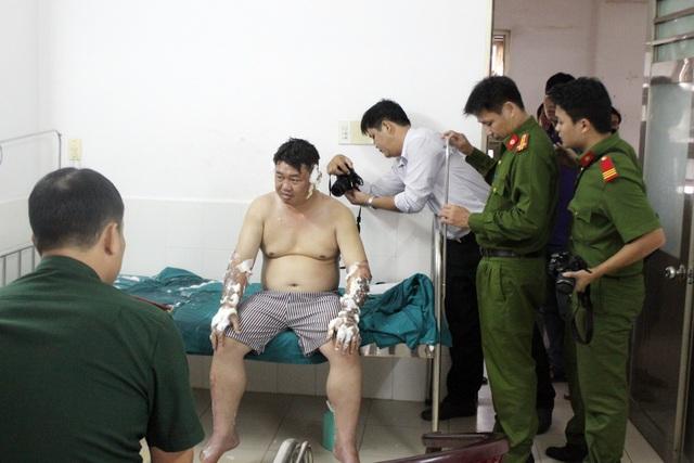 Anh Huy bị bỏng thương tích 32%