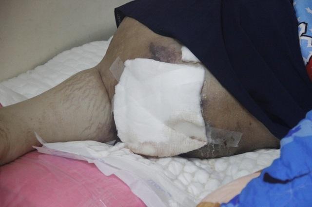 Cháu An bị liệt nằm một chỗ hơn 10 tháng nay
