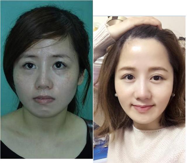 Bệnh nhân trước (trái) và sau khi chỉnh nha.