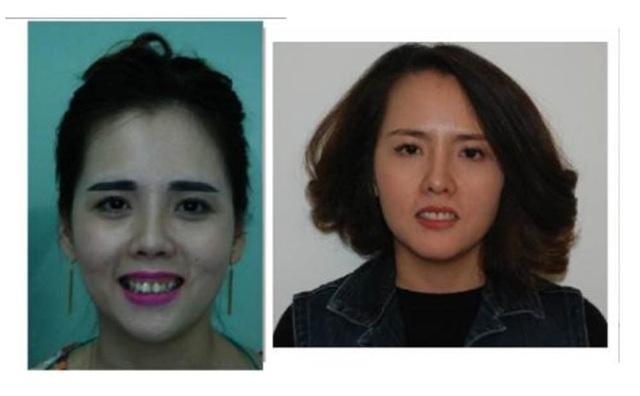 Tiến sĩ nha khoa Nguyễn Phú Hòa: Răng hô ngoài xấu còn ảnh hưởng đến sức khỏe! - 3