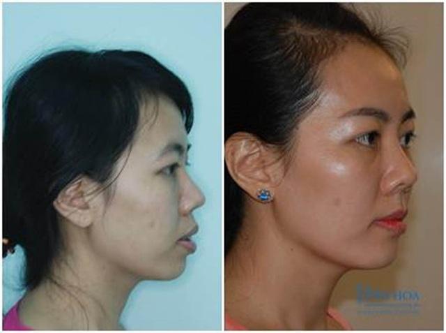 Tiến sĩ nha khoa Nguyễn Phú Hòa: Răng hô ngoài xấu còn ảnh hưởng đến sức khỏe! - 2