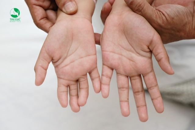 """Dị tật ảnh hưởng đến chức năng của bàn tay cũng như tâm lý của người bệnh, không ít trường hợp rơi vào trạng thái tự ti, xấu hổ, trầm cảm vì bàn tay """"khác biệt""""."""