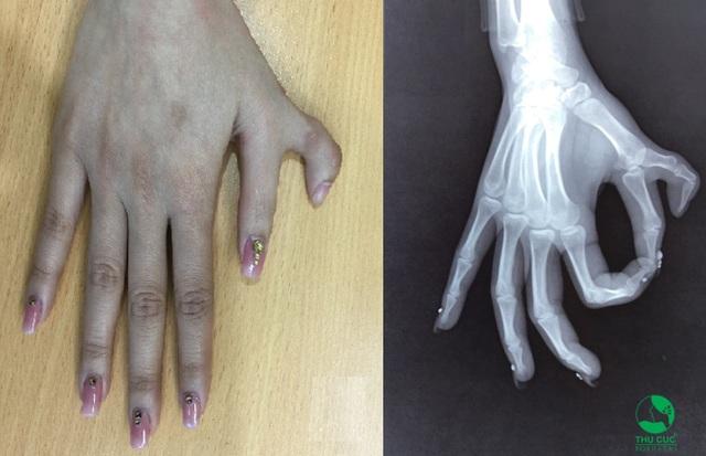 Một trường hợp bàn tay bị thừa ngón cái – dạng dị tật bàn tay thường gặp nhất bên cạnh dính ngón.