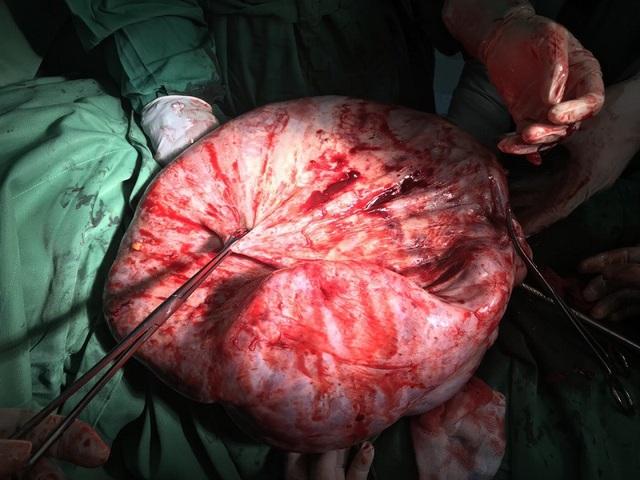 Khối u khổng lồ nặng tới 17kg được bác sĩ bóc tách lấy ra ngoài thành công