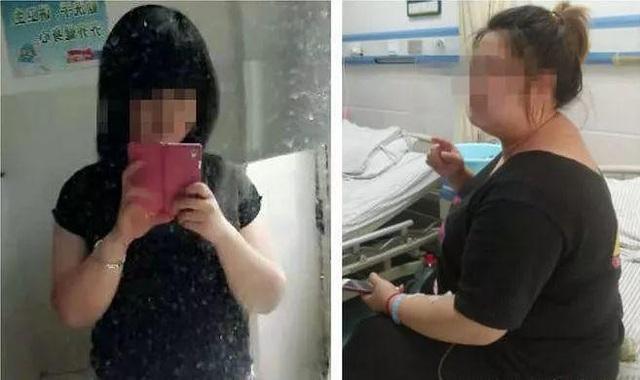 Cô gái uống thuốc giảm béo liền 7 năm, tăng... gấp đôi trọng lượng cơ thể - 1