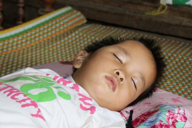 16 tháng tuổi, Bảo Trâm bị não úng thủy, xuất huyết não