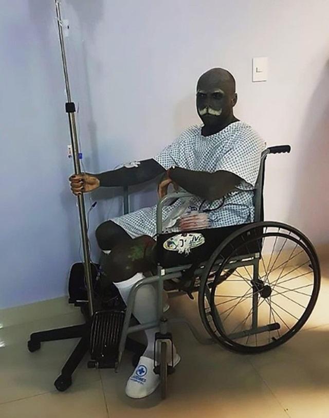 """Người đàn ông đến bệnh viện Jardines ở Guadalajara, Mexico để loại bỏ """"cậu nhỏ"""" và núm vú"""