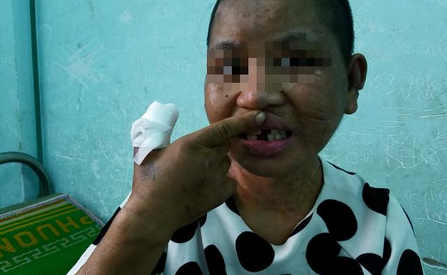 Sau khi bị dùng búa đánh nhưng không gãy răng, kẻ thủ ác dùng kìm bẻ gãy 3 chiếc răng Y Nhiêu