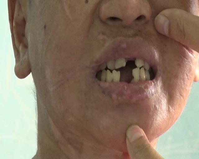 Răng của chị Y Nh bị người chủ dùng kìm nhổ, dùng dao xẻo thịt
