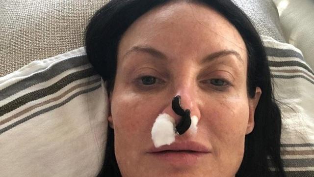 Bác sĩ cho đỉa hút toàn bộ máu mắc kẹt trong mũi của Shari