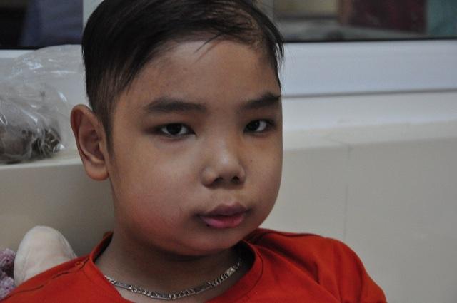Gương mặt bé Dương phù nề sau 1 thời gian điều trị.
