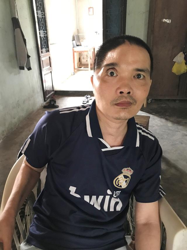 Tai nạn giao thông khiến anh Đệ phải bị khoét một phần hộp sọ, liệt nửa người và làm bạn với xe lăn