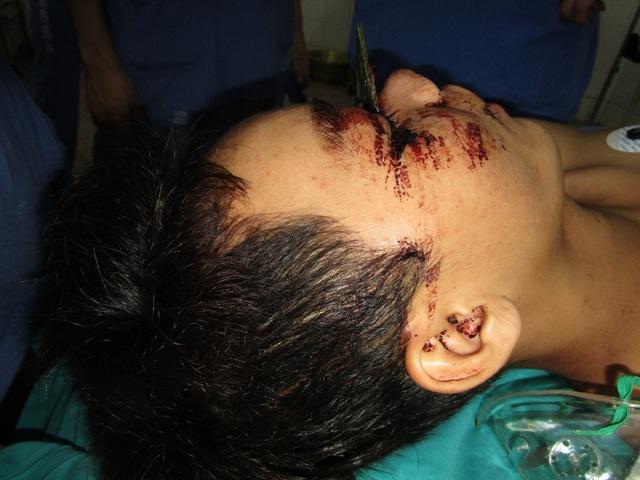 Lưỡi cưa cắm thẳng vào vùng giữa hai mắt bệnh nhân, nhô lên 5- 7 cm khi được đưa tới viện. Ảnh: BS cung cấp,