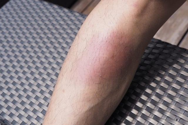 10 biểu hiện lạ ở da có thể là dấu hiệu của bệnh nghiêm trọng - 9
