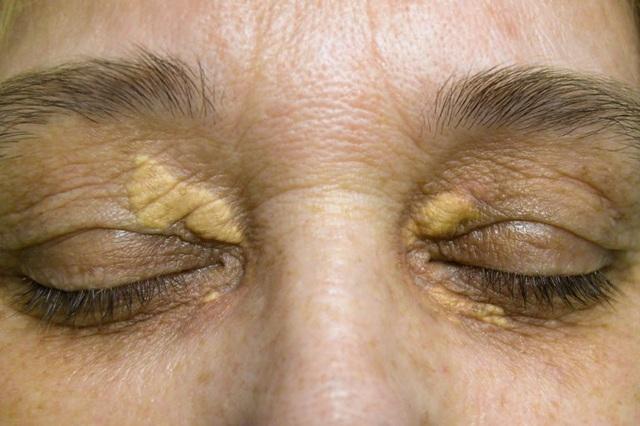 10 biểu hiện lạ ở da có thể là dấu hiệu của bệnh nghiêm trọng - 10