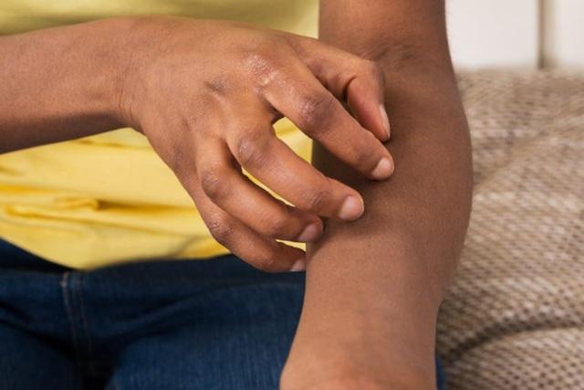 10 biểu hiện lạ ở da có thể là dấu hiệu của bệnh nghiêm trọng - 5