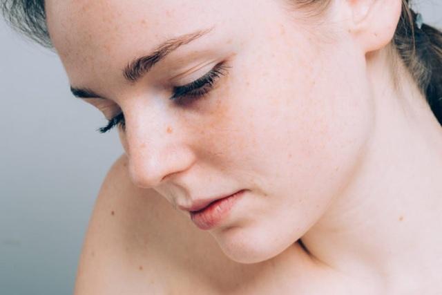 10 biểu hiện lạ ở da có thể là dấu hiệu của bệnh nghiêm trọng - 6