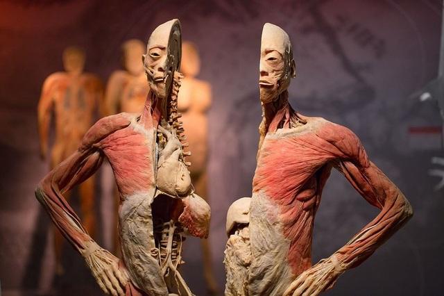 Một vật mẫu được trưng bày tại triển lãm Sự bí ẩn đặt biệt của cơ thể người ở TP.HCM.