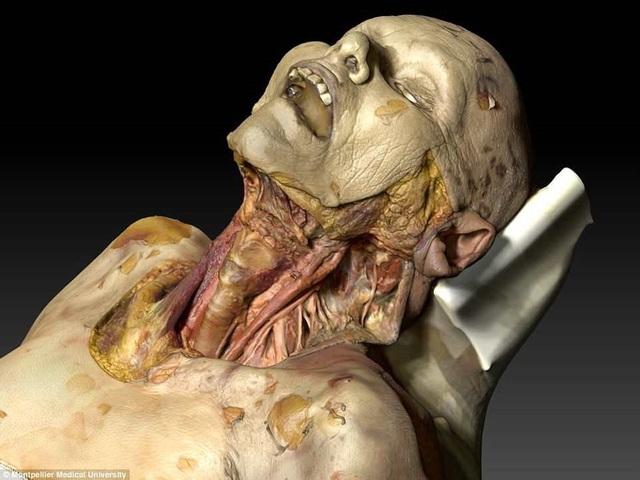 Xác chết ảo có thể được dùng để  giảng dạy về giải phẫu - 1