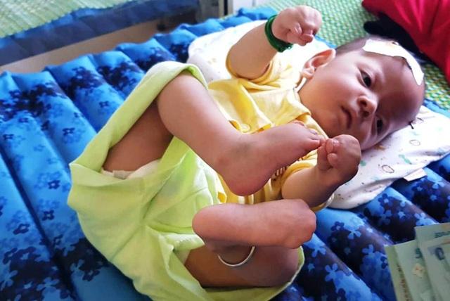 Từng ngày trôi qua, bé Gia Bảo càng khốn khổ, chịu biết bao đau đớn từ sự hành hạ của bệnh tật.