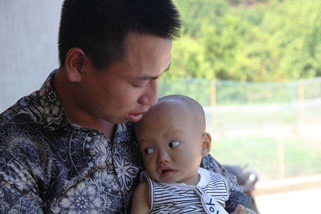Phan Văn Việt ôm con vào lòng thổn thức và mong rằng, thời gian tới con sẽ được các bác sỹ chữa khỏi bệnh.