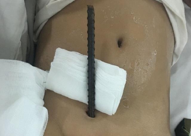 Bệnh nhi nhập viện với cây sắt đâm xuyên từ vùng kín lên bụng