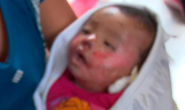 Cô bé mở mắt trong vòng tay mẹ
