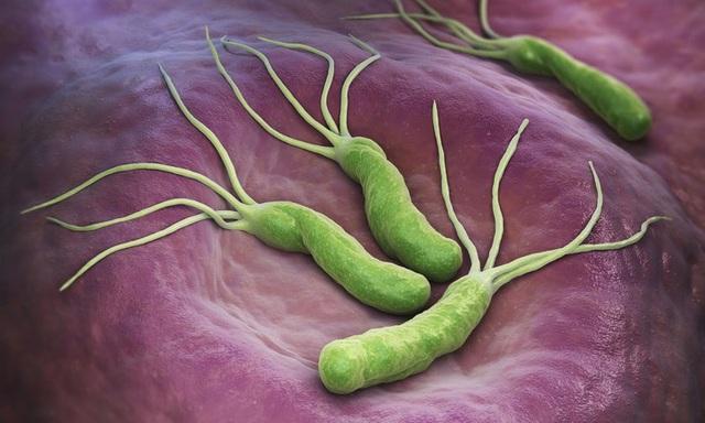 Nhiễm khuẩn HP (Helicobacter Pylori)