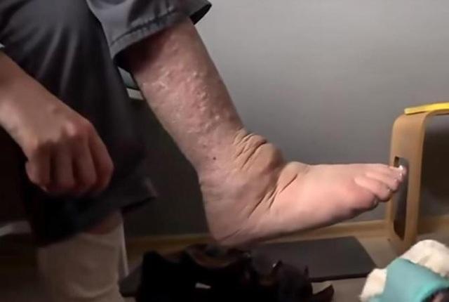 Anh phải sử dụng một đôi giày đặc biệt cho đôi chân bị biến dạng của mình