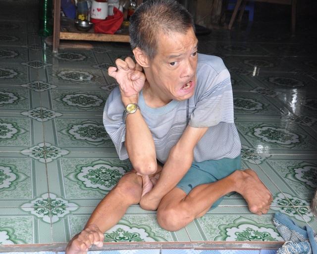 Anh Đỗ Văn Sáng bị di chứng chất độc da cam nên không tự làm được gì.