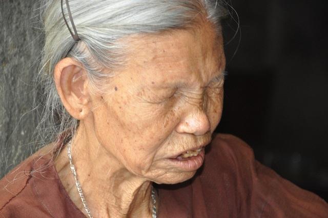 Đôi mắt đục mờ, bà không dám đi viện vì không có tiền.