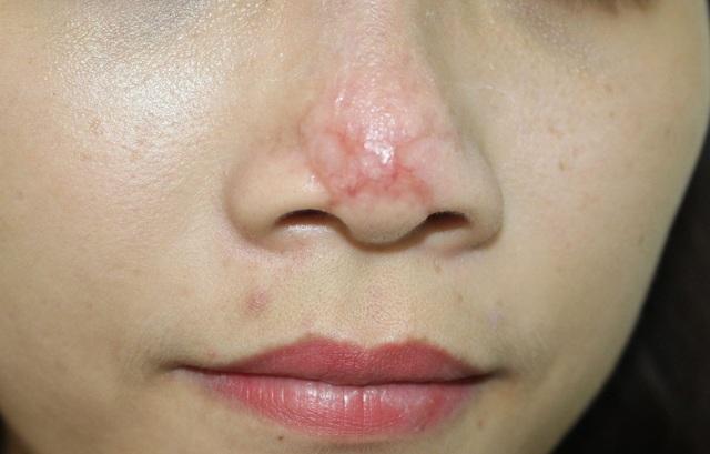 Trường hợp cô gái bị tắc mạch mũi do chất làm đầy điều trị tại BV Da liễu Trung ương sau hơn 40 ngày đã hết phù nề, mủ nhưng vết sẹo đầu mũi sẽ theo cô gái suốt cuộc đời. Ảnh: BS cung cấp.