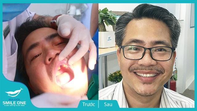 Bệnh nhân Hùng (52 tuổi) trước và sau khi cấy ghép Implant
