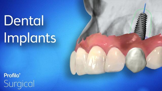 Trồng răng Implant và những điều bạn cần lưu ý - 1