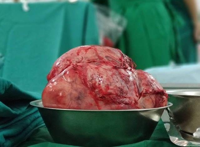 Trọng lượng của khối u lên tới 2,5kg
