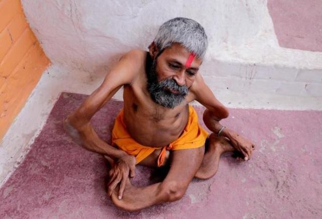...nhưng Bharat tin mọi chuyện bắt đầu từ năm 5 tuổi, khi ông bị một bức tường đổ vào người