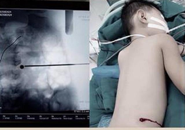 Bệnh nhi bị viên đạn xuyên vào lưng tại vị trí đốt sống L4 và L5