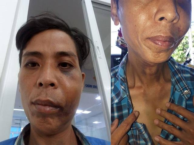 Sau hơn 10 ngày điều trị, các vết bầm tím trên mặt và cổ anh Hoan vẫn còn thấy rõ.