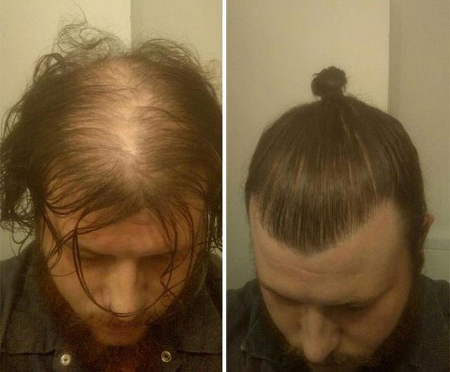 Bí mật của những anh chàng hay thích cột tóc.