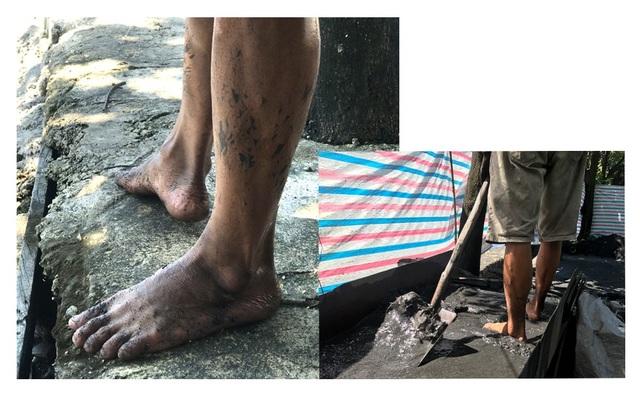 Chân của những người vớt than lem luốc, thường xuyên bị nấm, nước ăn.