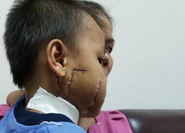 Nửa mặt bên phải và vùng cổ của bé trai bị cánh quạt công nghiệp chém nát