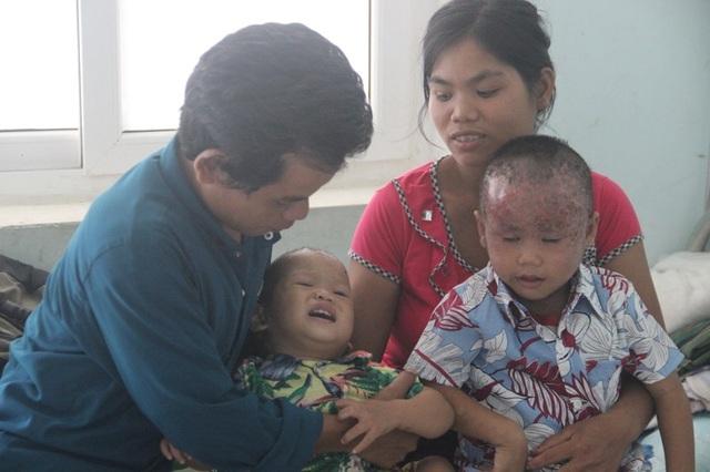 Hai đứa con trai của vợ chồng anh Vốc mang cái đầu lở loét