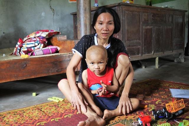 Sau chuỗi ngày nằm điều trị ở bệnh viện Nhi Trung ương, bé Giáp được về nhà nghỉ ngơi 1 tuần.